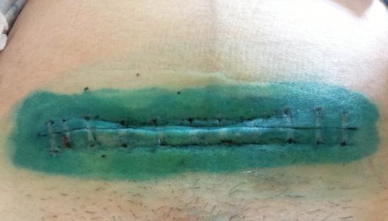 Фото осложнения после кесарева сечения