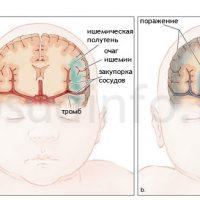 Последствия гипоксии плода для ребенка