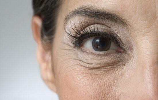 Почему образуются морщины под глазами