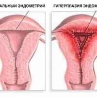 Толщина эндометрия для зачатия в норме